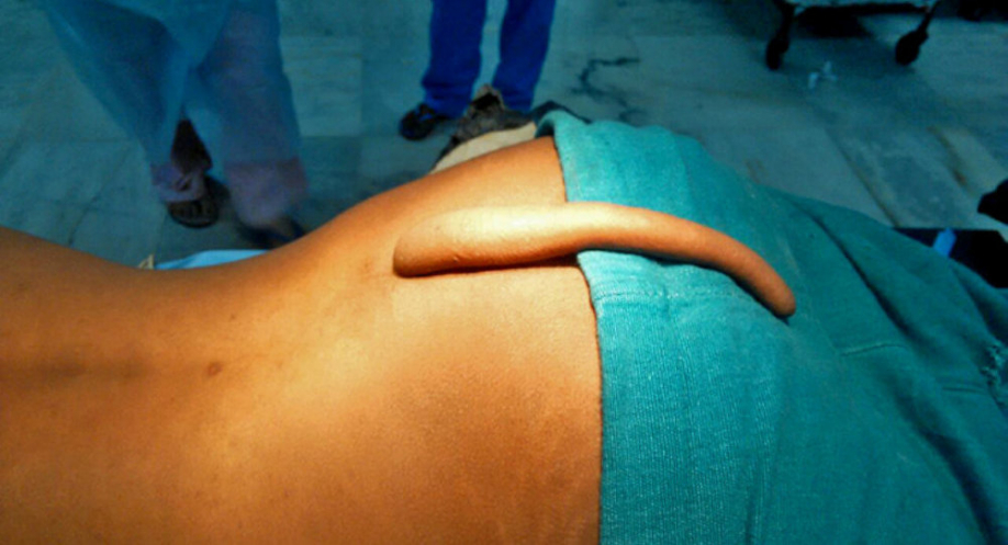 Врач изИндии удалил юноше 18-сантиметровый хвост