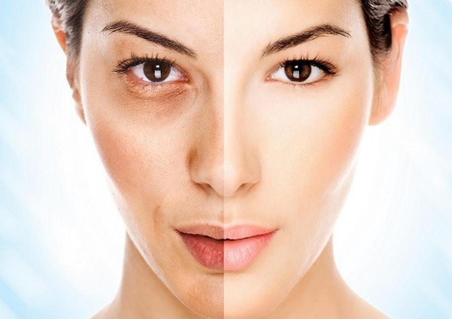 Отбеливание кожи может вызвать рак— Ученые